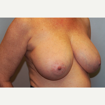 55-64 year old woman treated with Breast Reduction before 3803220