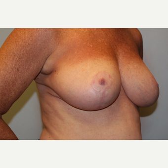 55-64 year old woman treated with Breast Reduction after 3803220