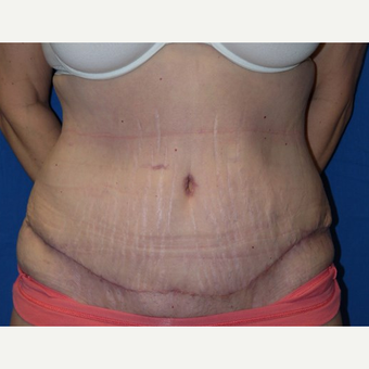 Tummy Tuck after 3743970
