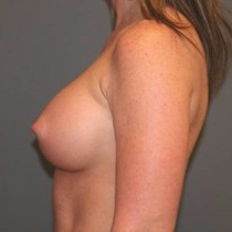 45-54 year old woman treated with Breast Implants after 3299908