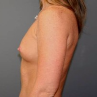 45-54 year old woman treated with Breast Implants before 3299908