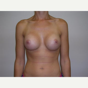 25-34 year old woman treated with Breast Augmentation after 2247921