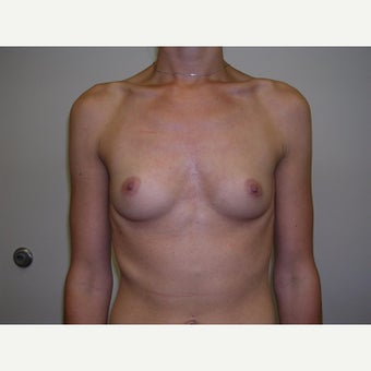 25-34 year old woman treated with Breast Augmentation before 2247921