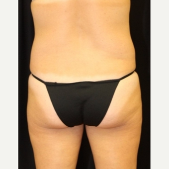 40 year old woman treated with CoolSculpting Non Surgical Fat Reduction after 3702308