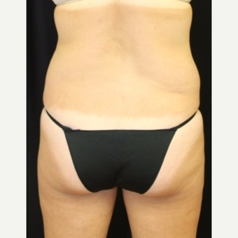 40 year old woman treated with CoolSculpting Non Surgical Fat Reduction before 3702308