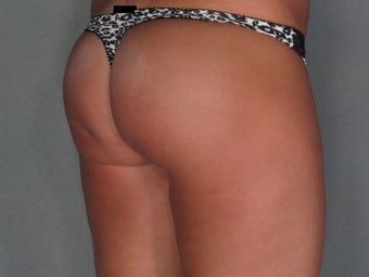 Buttock Augmentation with Implants after 1275124