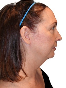 48 year old woman treated with closed neck lift before 2870077