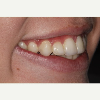 18-24 year old woman treated with Dental Bonding after 3305009