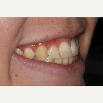 18-24 year old woman treated with Dental Bonding before 3305009