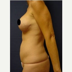 45-54 year old woman treated with Mini Tummy Tuck before 2074080