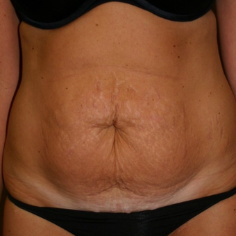 35-44 year old woman treated with Tummy Tuck before 3500781