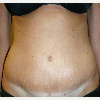 35-44 year old woman treated with Tummy Tuck after 3500781