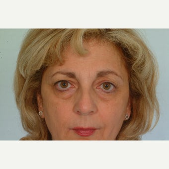 53 year old upper and lower eyelid surgery