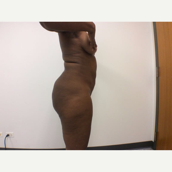 25-34 year old woman treated with Fat Transfer after 3590424