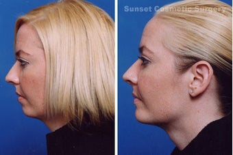 Submental Liposuction (chin/neck) with Chin Implant before 255547