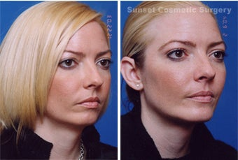 Submental Liposuction (chin/neck) with Chin Implant after 255547