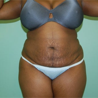 35-44 year old woman treated with Tummy Tuck before 2204938