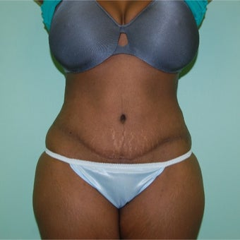 35-44 year old woman treated with Tummy Tuck after 2204938