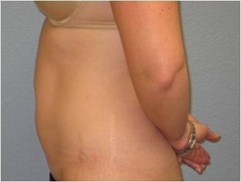 35-44 year old woman treated with Liposuction 3726476