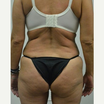 45-54 year old woman treated with Mini Tummy Tuck after 2211388
