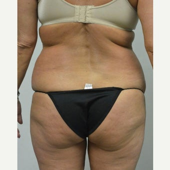 45-54 year old woman treated with Mini Tummy Tuck before 2211388