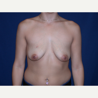 25-34 year old woman treated with Breast augmentation before 3136268