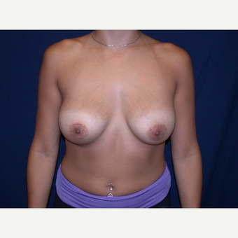 25-34 year old woman treated with Breast augmentation after 3136268