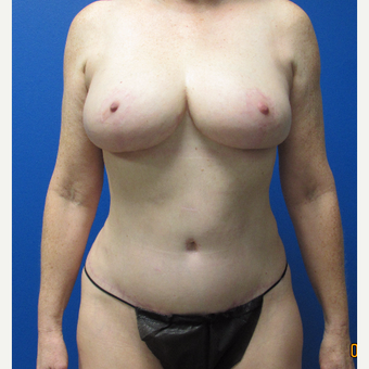 59 year old woman treated with Mommy makeover after 3703752