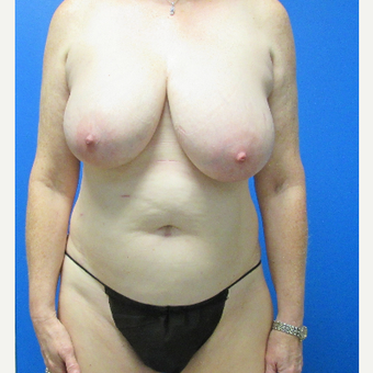 59 year old woman treated with Mommy makeover before 3703752