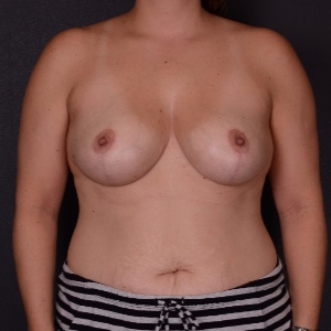 35-44 year old woman treated with Breast Reduction after 3163261