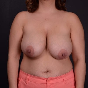 35-44 year old woman treated with Breast Reduction before 3163261