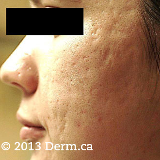 Acne Scars Treatment - 28 year old woman treated with fractional laser twice before 1718713