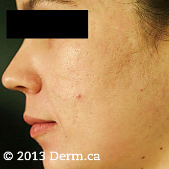 Acne Scars Treatment - 28 year old woman treated with fractional laser twice after 1718713