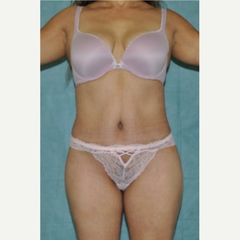 45-54 year old woman treated with Tummy Tuck after 1734036