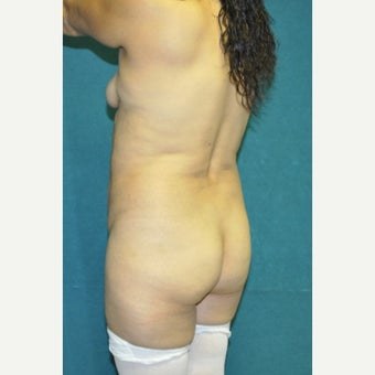 45-54 year old woman treated with Tummy Tuck 1734036