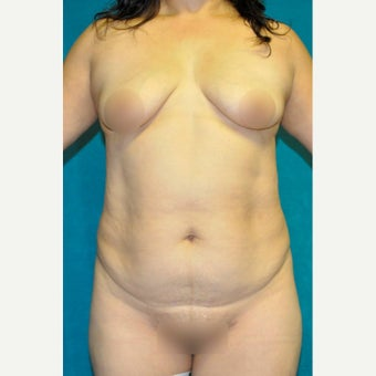 45-54 year old woman treated with Tummy Tuck before 1734036