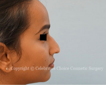 18-24 year old woman treated with Rhinoplasty before 3768589