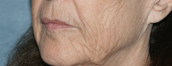 Before and After Fraxel Laser 1064711