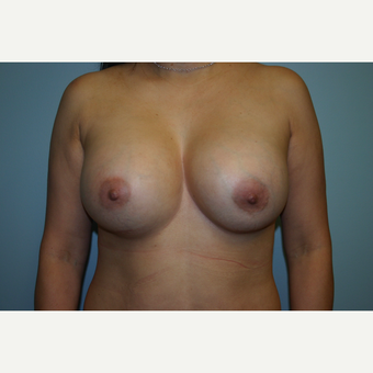 Breast Augmentation after 3553570