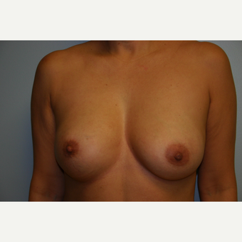 Breast Augmentation before 3553570