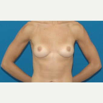 22 year old woman treated with Breast Implants before 3205513