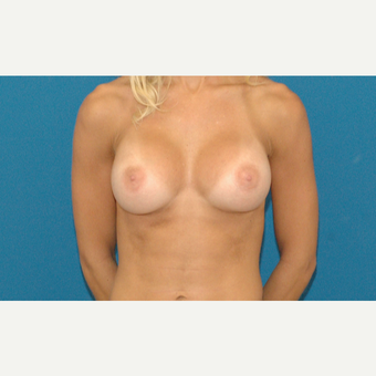 22 year old woman treated with Breast Implants after 3205513