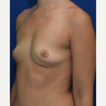 25-34 year old woman treated with Breast Augmentation before 3661535
