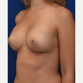25-34 year old woman treated with Breast Augmentation after 3661535