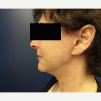 55-64 year old woman treated with Facelift after 3225046