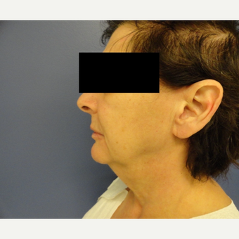 55-64 year old woman treated with Facelift before 3225046