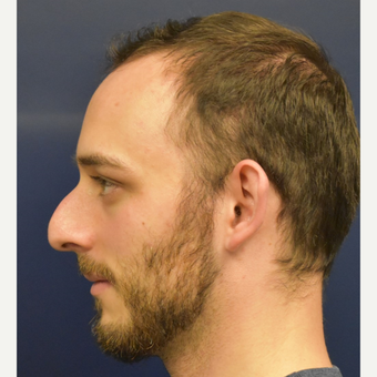 18-24 year old man treated with Rhinoplasty before 3067129