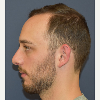 18-24 year old man treated with Rhinoplasty after 3067129