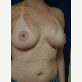 25-34 year old woman treated with Breast Augmentation after 3110109