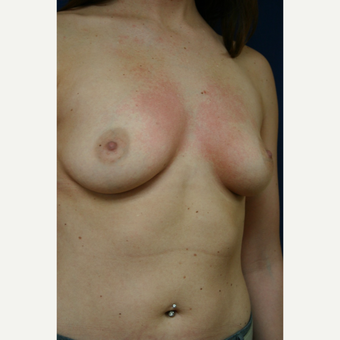 25-34 year old woman treated with Breast Augmentation before 3110109